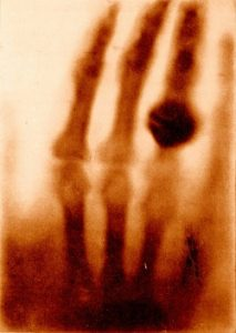 The first X-Ray taken of Röentgen wife's hand